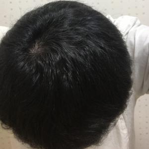 ハゲ治療VOL.9【AGA治療4ヶ月経過・毛が太くハリやコシも抜群です】