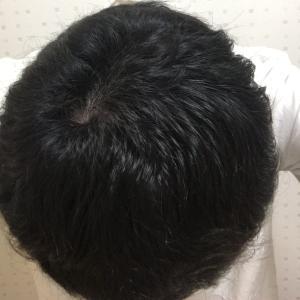 ハゲ治療VOL.10【AGA治療4.5ヶ月経過・頭頂部の手触りが良い感じです】