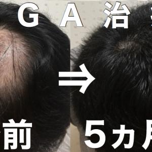 AGA治療5ヶ月経過【カッパハゲからフサフサまでの流れ】
