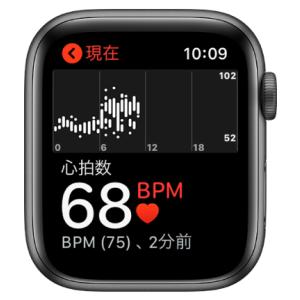 74歳の男性、Apple Watchで心房細動を発見
