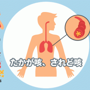アレルギーによる咳喘息になって思った養生の難しさ