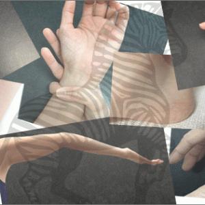 エーラス・ダンロス症候群(EDS)かどうか診てもらってきた 4奮闘目:かかりつけの整形外科にて
