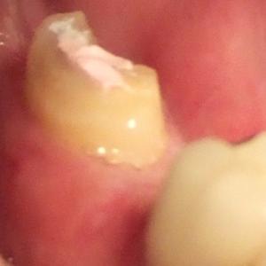 歯牙移植1週間から2週間