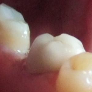 歯牙移植1ヶ月半、そろそろ移植歯を使おう
