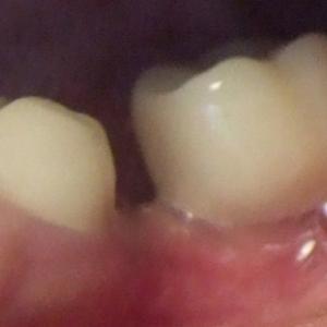 【2ヶ月21日目】移植歯で噛めるかもしれない!