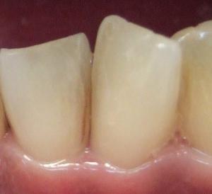 【3ヶ月16日目】初期虫歯ではなく着色?
