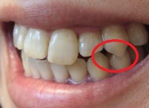 【7ヶ月6日目】八重歯の正しい位置は??