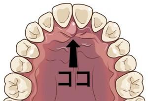 【8ヶ月6日目】舌の位置で顔が変わる?