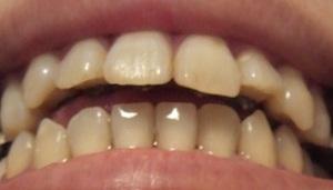 【9ヶ月8日目】舌の左半分が弱い