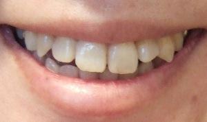 【9ヶ月10日目】奥歯が痛いがいちばん辛かったなぁ