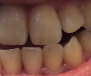 【10ヶ月5日目】前歯が噛み合った!?