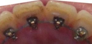 【10ヶ月8日目】前歯の裏の着色を取ってみた。