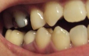 【11ヶ月29日目】起きたら移植歯が…