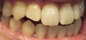 【1年5ヶ月11日目】上下の歯の隙間