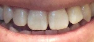 【1年7ヶ月9日目】右の八重歯