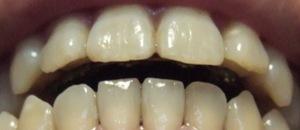 【1年7ヶ月13日目】前歯がどんどん離れていくー