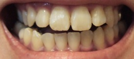 【1年7ヶ月18日目】舌を上げると前歯を押す…?