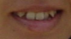 【1年9ヶ月9日目】すごく若い頃の歯並び