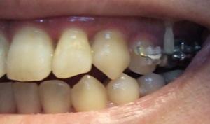 【1年10ヶ月13日目】歯ぎしりが怖い