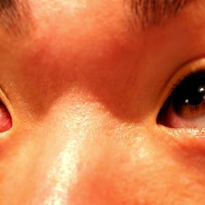 【閲覧注意】トレーニングのやりすぎで目の毛細血管が…
