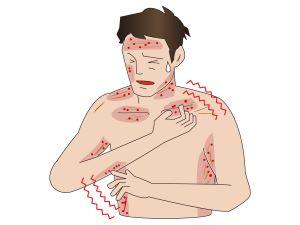 300人に一人と言われる乾癬を知ってますか?