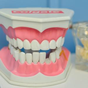 アメリカで歯のクリーニング