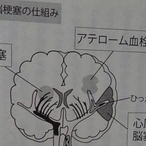 心原性脳感染症(脳塞栓)とは?