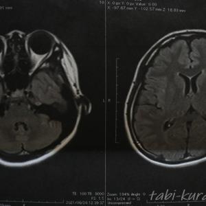 眼科医に勧められたので、脳神経外科でMRIを体験してみた 緑内障か脳の病気か