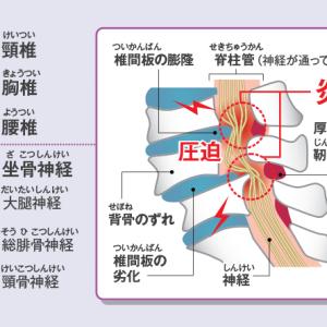 脊柱管狭窄症の方が来院されました