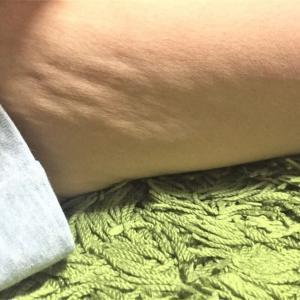 水着の大敵【セルライト】お肌ボコボコの原因は?!予防と対策