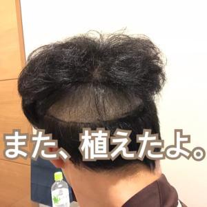AGAになんて負けない(16) 2回目の植毛!え、失敗!?