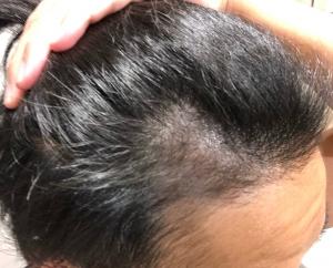 36歳サラリーマンが自毛植毛を行うにあたり
