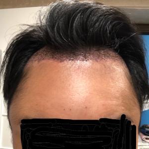 自毛植毛3日目 (オデコの異常な腫れとシャンプーについて)