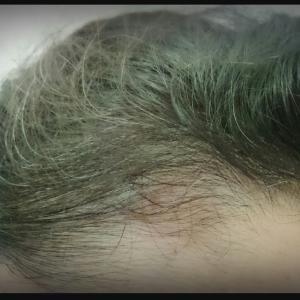 「白髪」「薄毛」「頭皮のべたつき」に悩む40代ワーキングママへ。