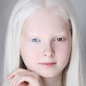 オッドアイとアルビノ、2つのスペシャルを持って生まれたチェチェンの美少女