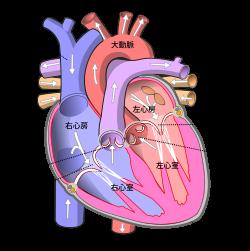 総肺静脈還流異常症