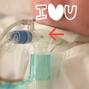 気管切開部からお水が入ってちゃまくん窒息しかけた