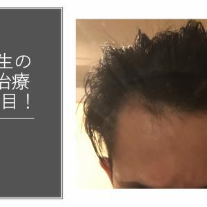大学生の若ハゲ(AGA)治療120日目【内服薬】