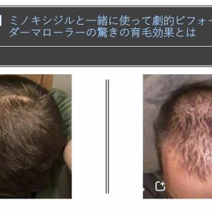 【写真比較】頭皮へのダーマローラー使用でハゲ&薄毛が回復した事例を紹介!驚きの育毛・発毛効果が判明。