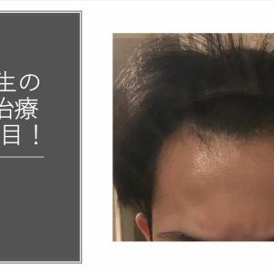 大学生の若ハゲ(AGA)治療150日目【内服薬】