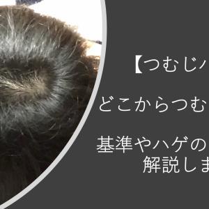 【つむじハゲの悩み】どこからつむじハゲ?AGA治療でつむじハゲは治るのかを解説