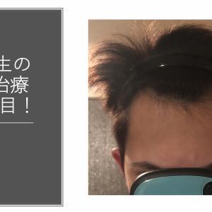 大学生の若ハゲ(AGA)治療165日目【内服薬】