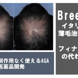 【Breezula】女性のための薄毛治療医薬品!フィナステリドよりも安全に使えると話題に