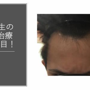 大学生の若ハゲ(AGA)治療210日目【内服薬】