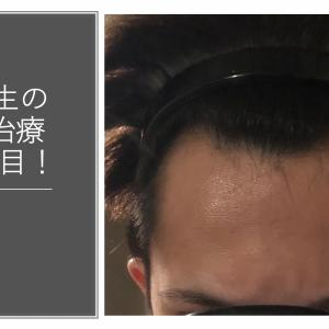 大学生の若ハゲ(AGA)治療240日目【内服薬】