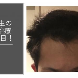 大学生の若ハゲ(AGA)治療270日目【内服薬】