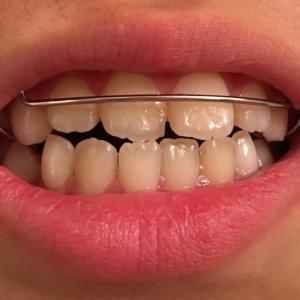 【効果・費用は?】次女(小学生)、歯科矯正始めました!