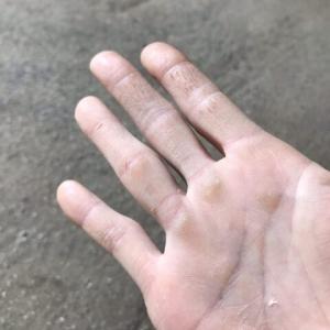 豆だらけの掌は家具職人の仕事をしている証ですが恥ずかしい?