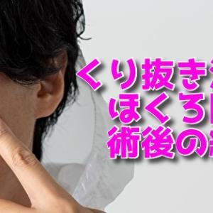 体験談【皮膚科保険適用】ホクロをパンチくり抜き法で除去しました。費用と跡は残るの?術後の経過まとめ