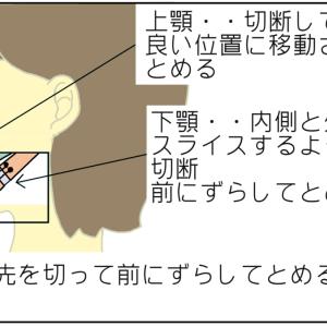 上顎前突・下顎後退の手術内容【顎変形症・外科矯正】